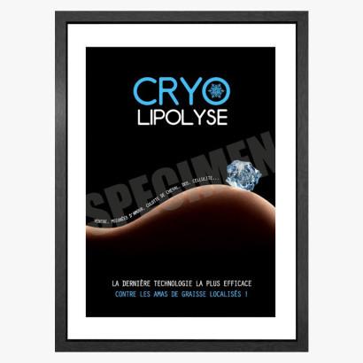 PLV Cryolipolyse